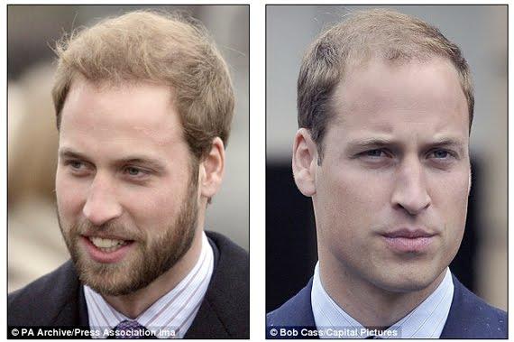prince-william-met-baard-en-zonder Hot or not? Mannen met baard