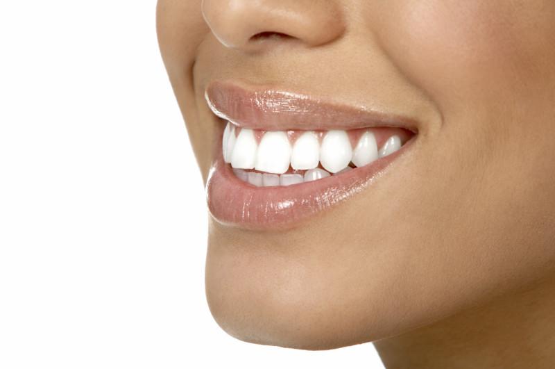 tanden bleken tips
